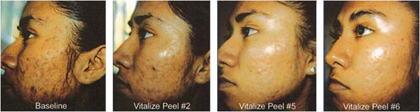 The Vitalize Peel Result Image