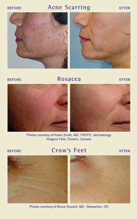 Before and after Genesis Skin Rejuvenation
