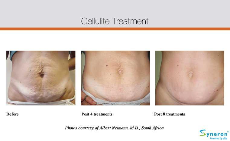 cellulite-ba2