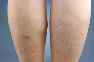 Leg Vein Treatments