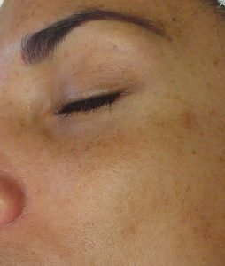 before photo of hydrafacial