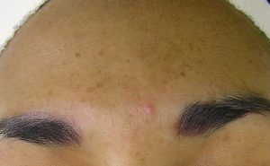 before shot of hydrafacial