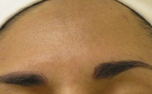 after photo of Hydrafacial