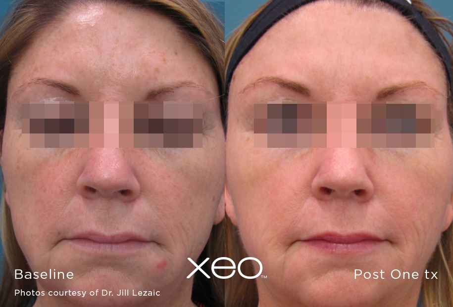LimeLight Facial before and after