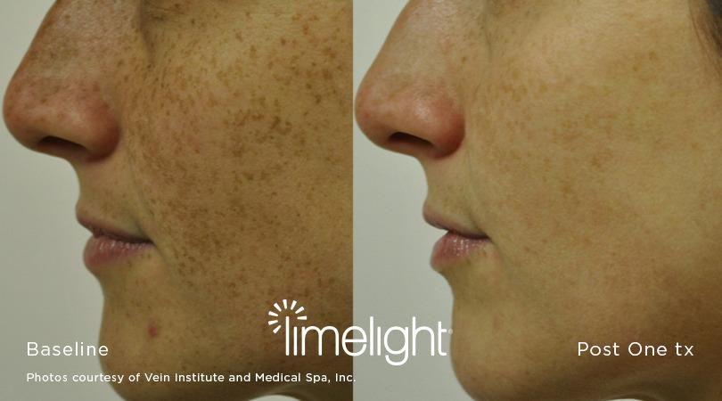 LimeLight Facial