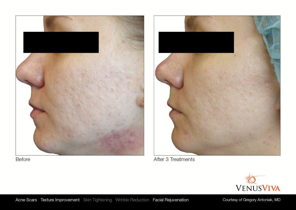 venus viva skin resurfacing before and after